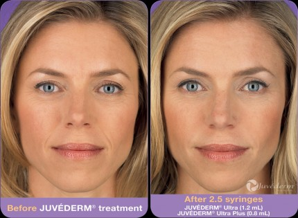 juvederm-woodstock-ga_before_after