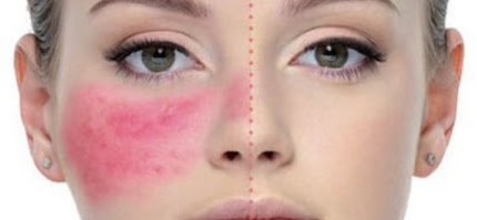 Rosacea Skin Care Treatment