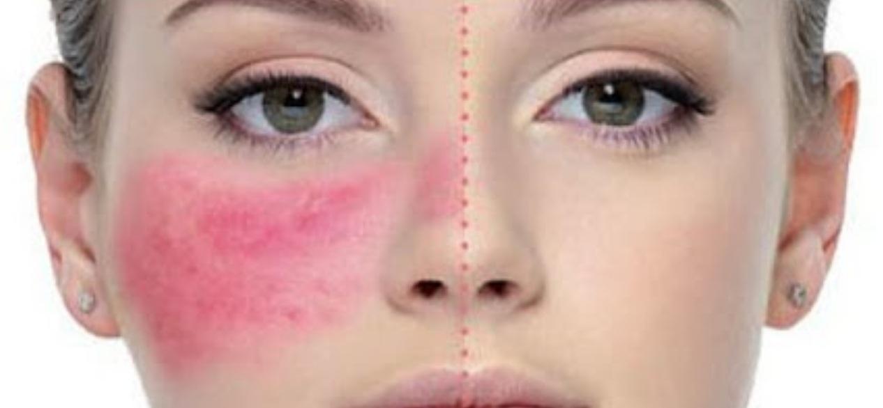 rosacea skin care,