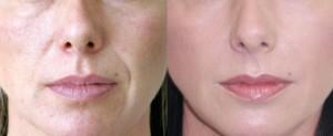 collagen treatment